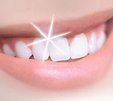 teeth whitening faq | arcadia ca dentist