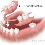 Dentures or Artificial Teeth
