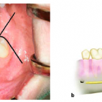 Extraction of Impacted Teeth