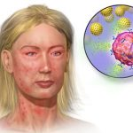 Anaphylaxis and the body's Physiologic response to Anaphylaxis – Video
