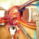 Aortic Valve Replacement surgery – Video