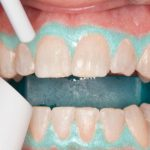 In Office Dental Whitening – Video