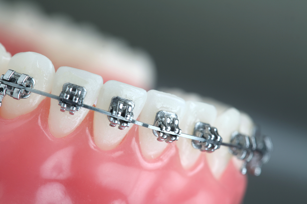 Orthodontics-Gold-Coast-1