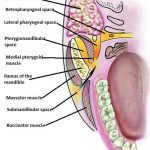 Classification of Fascial Spaces