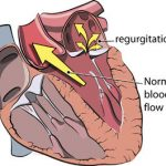 Mitral Regurgitation Signs and Symptoms – Video