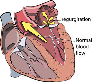 mitral-valve-regurgitation-diagram_3