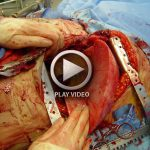 Heart and Lung Transplantation – Video