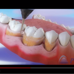 Treatment of periodontal disease – Scaling and root planing – 3D Video