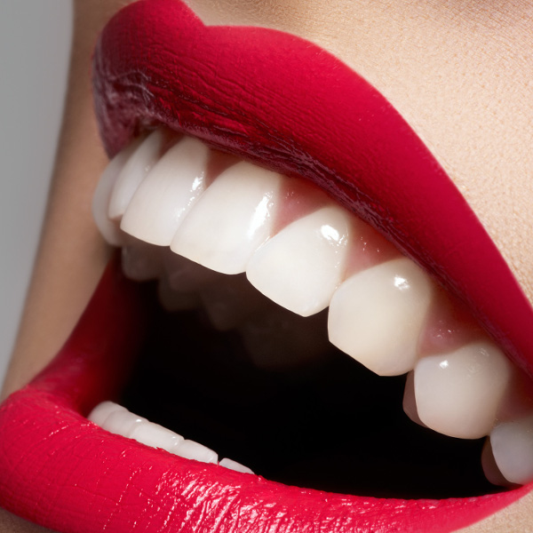 white-teeth-red-lips-smile