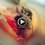 Botfly Maggot Removed from the Eye