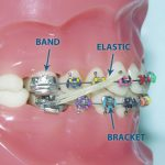 MCQs of Orthodontics