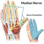 Median Nerve – EXAM ANSWERS
