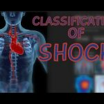 Shock Explained Clearly – Video Lecture