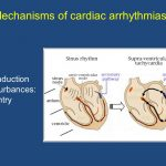 ECG Interpretation – Mechanisms of Tachyarrhythmias – Video Lecture