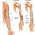 Fractures of the humeurs and possible nerve injuries