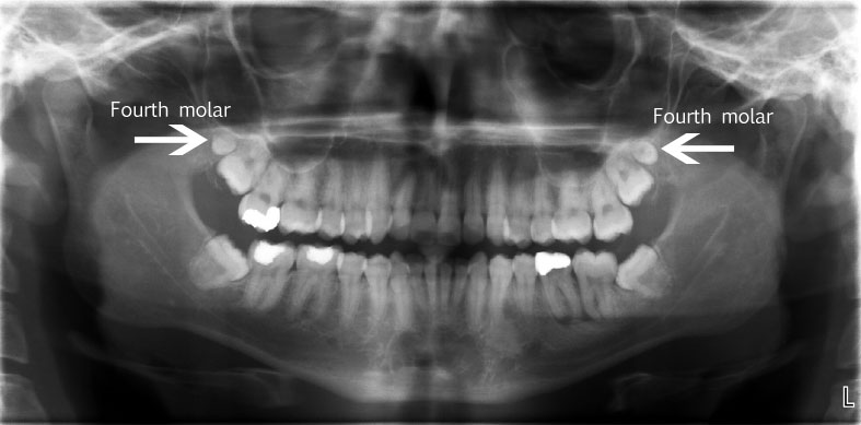 mandibular_peg_fourth_molar