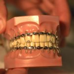 Intermaxillary Fixation with Erich Arch Bars – Video