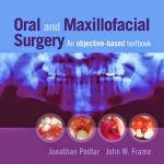 Oral and Maxillofacial Surgery: An Objective-Based Textbook 2nd Edition