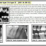 Dentin Dysplasia Type 1 – Video Lecture