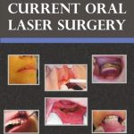 Atlas Of Current Oral Laser Surgery – S. Namour PDF