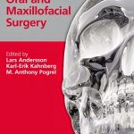 Oral and Maxillofacial Surgery – Lars Andersson PDF Download