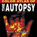 Color Atlas of the Autopsy e book (PDF) Download