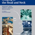 Imaging of the Head and Neck, 2nd Edition PDF Download