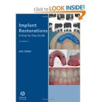 Implant Restorations – A Step by Step Guide 2nd edition PDF – Carl Drago Download