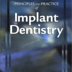 Principles and Practice of Implant Dentistry PDF Download
