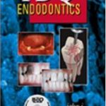 PDQ Endodontics – Ingle PDF Download