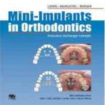 Mini-implants in Orthodontics: Innovative Anchorage Concepts PDF Download