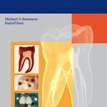 Endodontology by Michael Baumann and Rudolf Beer Download