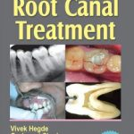 Step by Step Root Canal Treatment PDF by Singh Gurkeerat Download