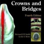 Planning and Making Crowns and Bridges, 4th Edition PDF Download