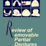 Review of Removable Partial Dentures by M Lovely Download