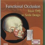 Functional Occlusion From TMJ to Smile Design Download