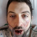 30 years old Man loses seven teeth and had second degree burn after e-cigarette explodes in his face