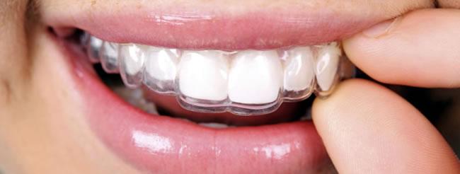 orthodontics_treatments