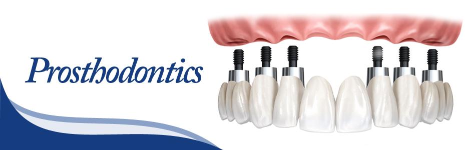 prosthodontics-reports