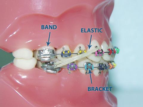 hidden-lakes-orthodontics-elastics-example